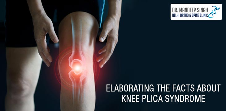 Elaborating The Facts About Knee Plica Syndrome