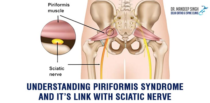 Understanding Piriformis Syndrome And It's Link With Sciatic Nerve