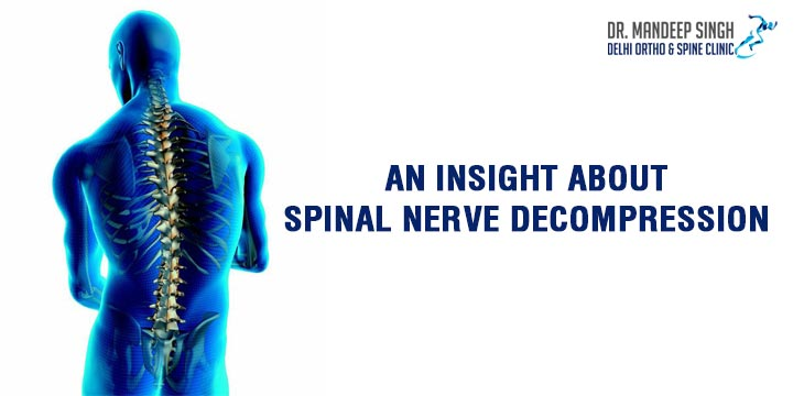 An Insight About Spinal Nerve Decompression